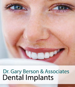 Dental Implants in Monticello